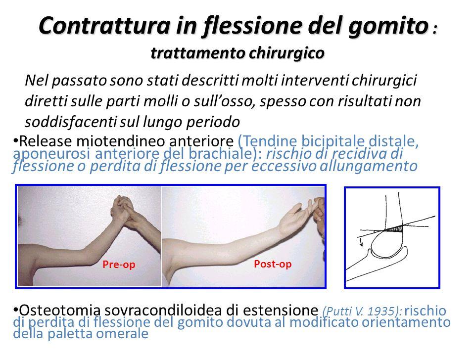 Contrattura in flessione del gomito : trattamento chirurgico