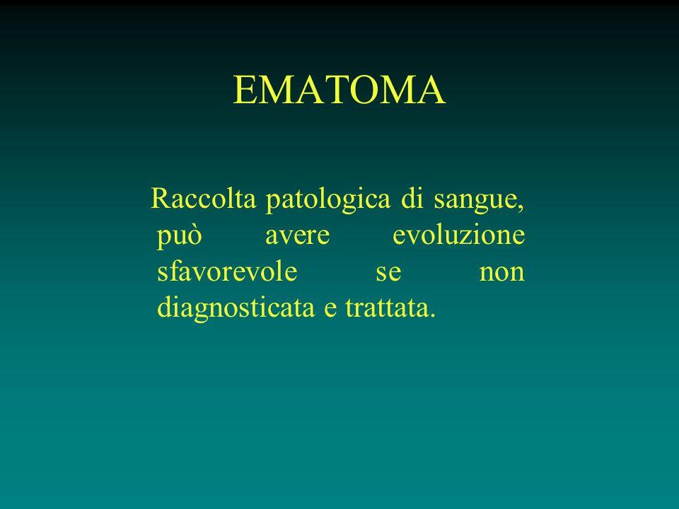 EMATOMA Raccolta patologica di sangue, può avere evoluzione sfavorevole se non diagnosticata e trattata.