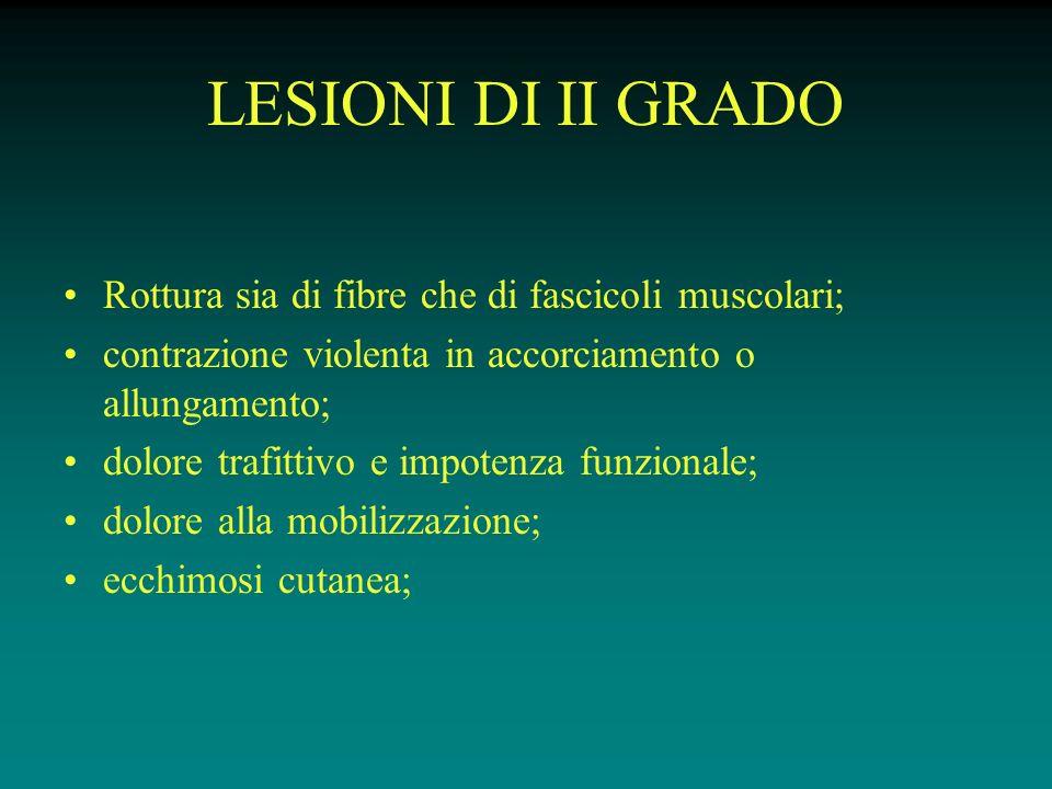 LESIONI DI II GRADO Rottura sia di fibre che di fascicoli muscolari;