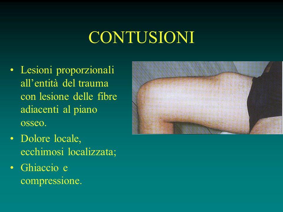 CONTUSIONI Lesioni proporzionali all'entità del trauma con lesione delle fibre adiacenti al piano osseo.