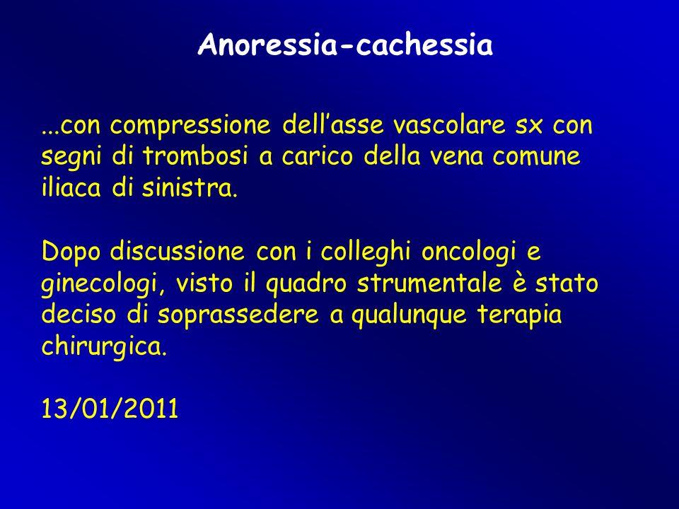 Anoressia-cachessia ...con compressione dell'asse vascolare sx con segni di trombosi a carico della vena comune iliaca di sinistra.