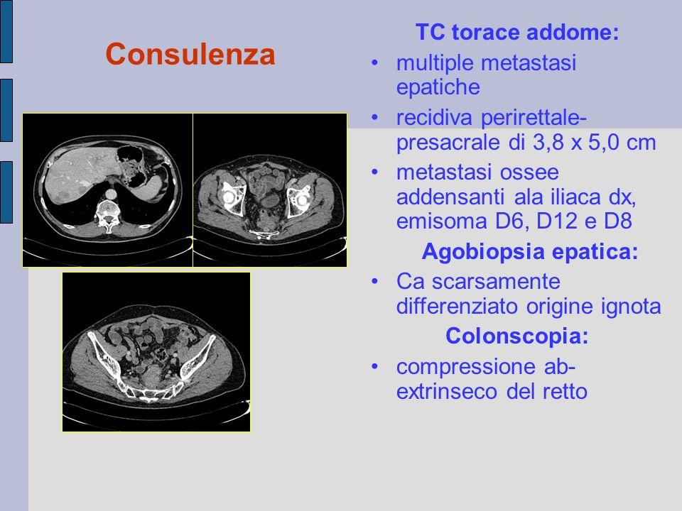Consulenza TC torace addome: multiple metastasi epatiche