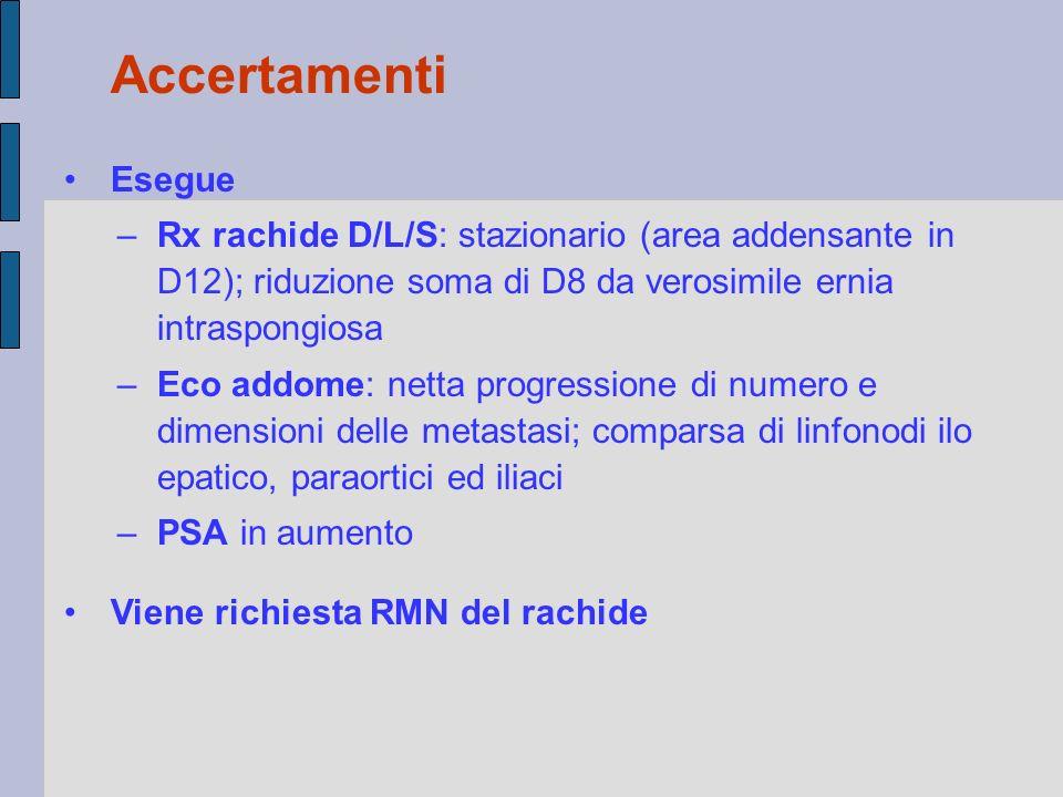 Accertamenti Esegue. Rx rachide D/L/S: stazionario (area addensante in D12); riduzione soma di D8 da verosimile ernia intraspongiosa.
