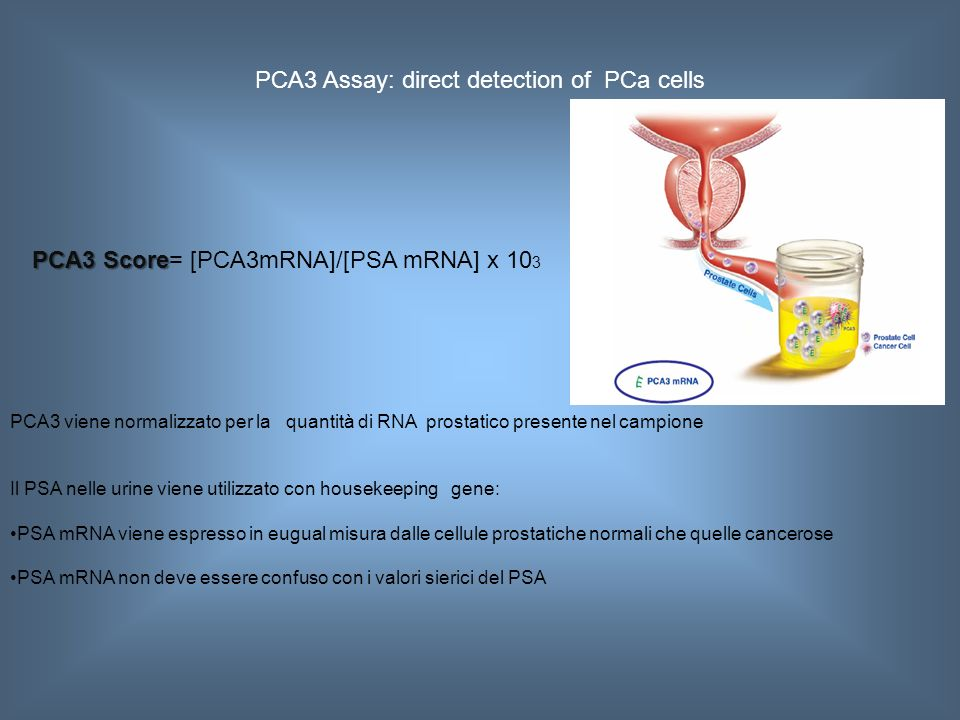 PCA3 Assay: direct detection of PCa cells