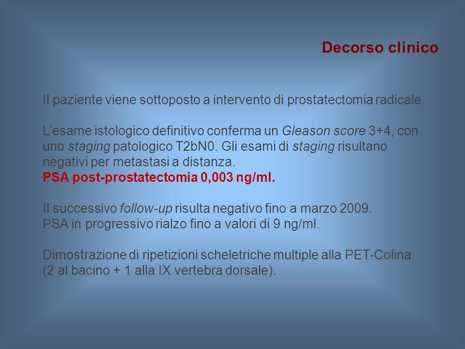 Decorso clinico Il paziente viene sottoposto a intervento di prostatectomia radicale.