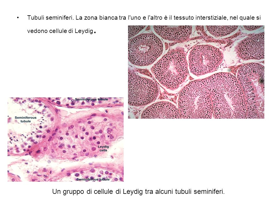 Un gruppo di cellule di Leydig tra alcuni tubuli seminiferi.