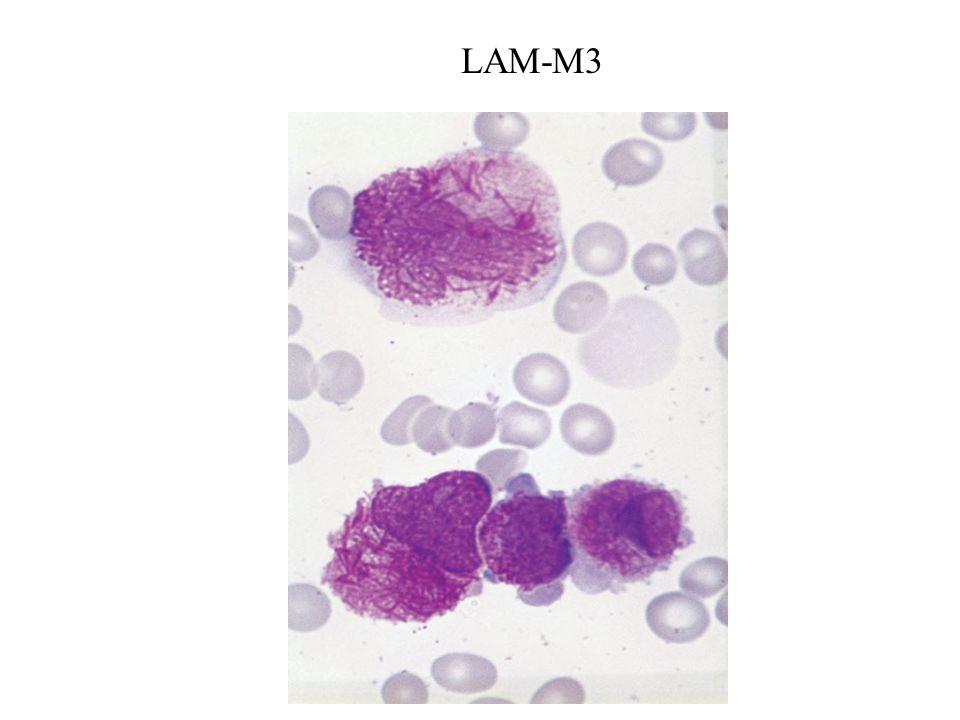 LAM-M3