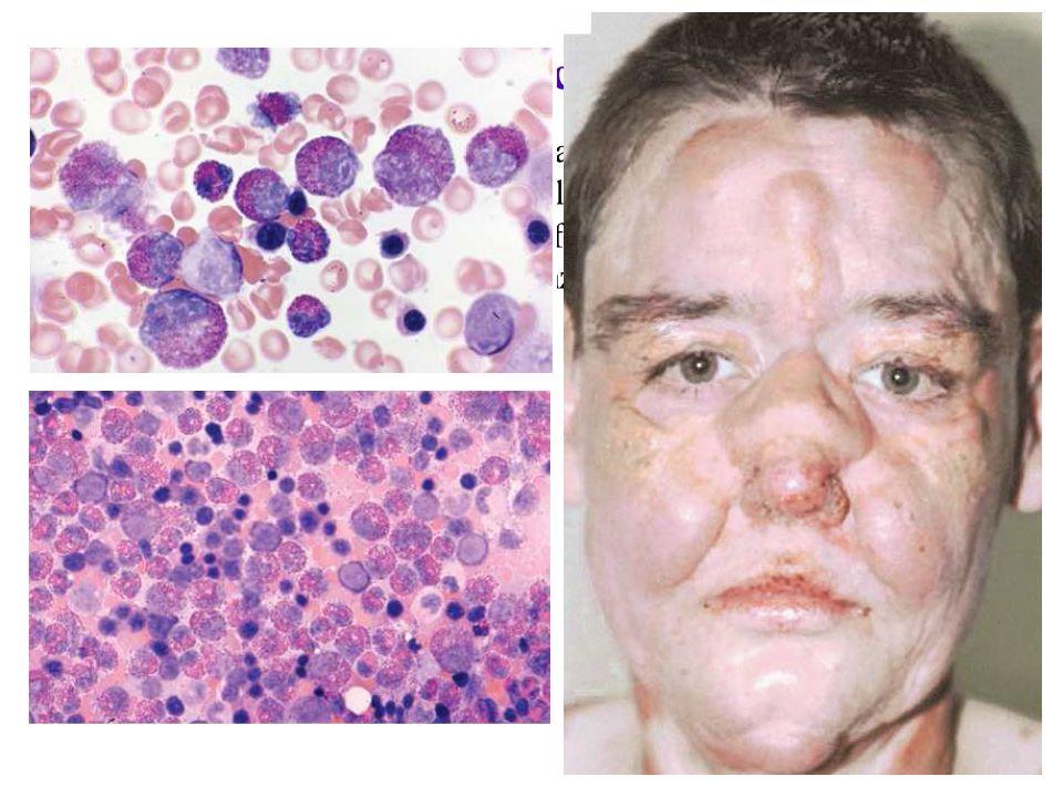 Leucemia Eosinofilica Cronica (LEC)