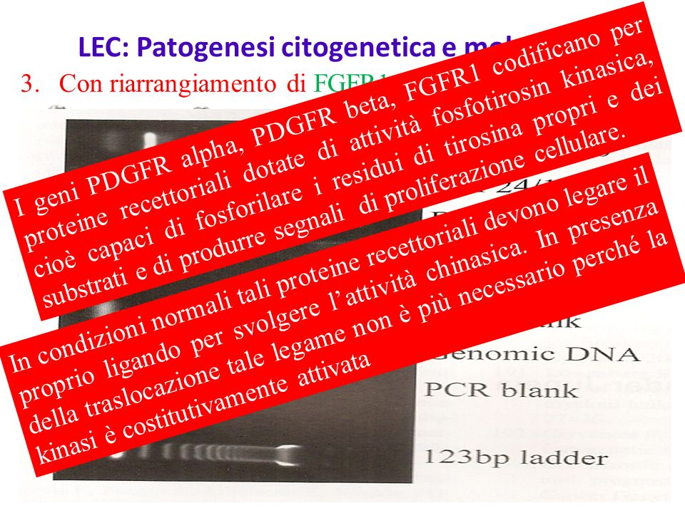 LEC: Patogenesi citogenetica e molecolare