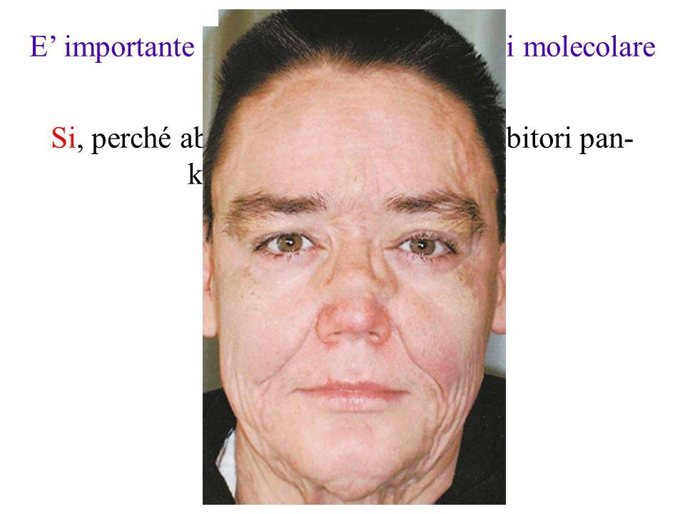 E' importante determinare la patogenesi molecolare della LEC