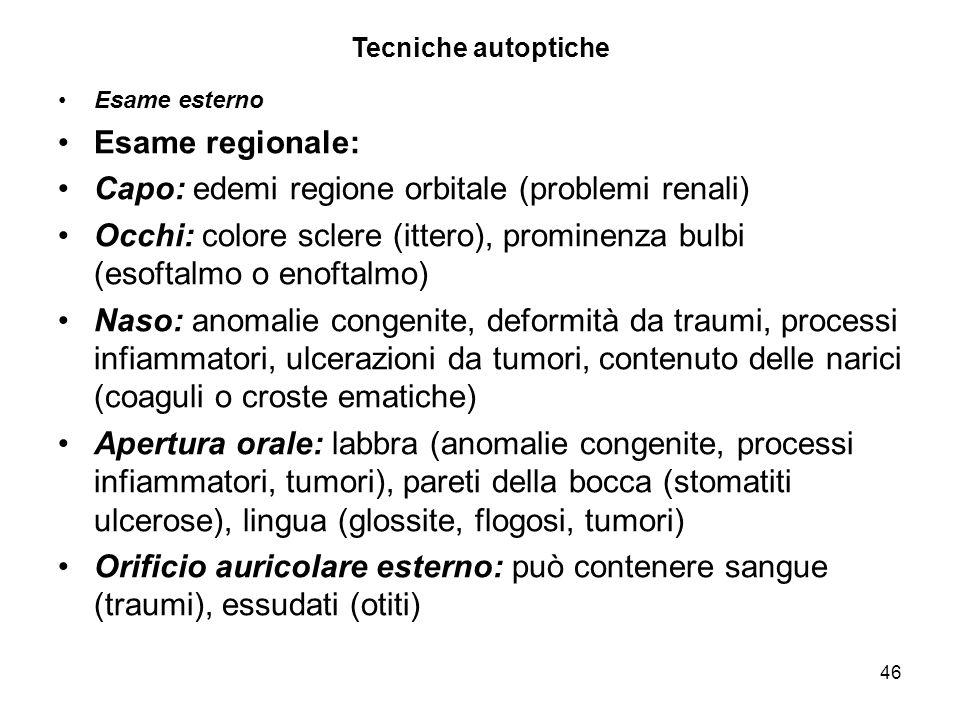 Capo: edemi regione orbitale (problemi renali)