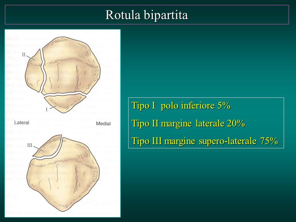 Rotula bipartita Tipo I polo inferiore 5% Tipo II margine laterale 20%