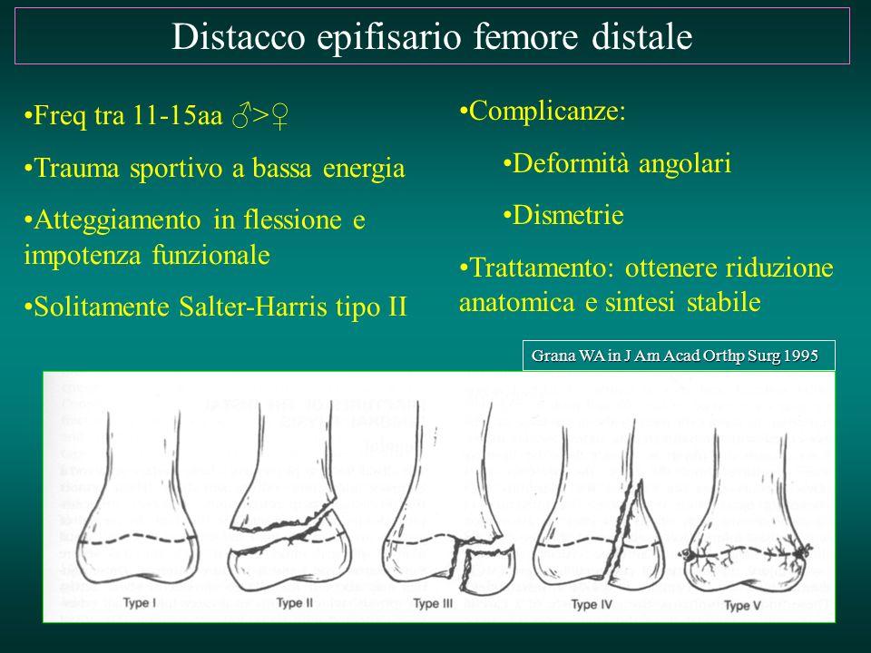 Distacco epifisario femore distale