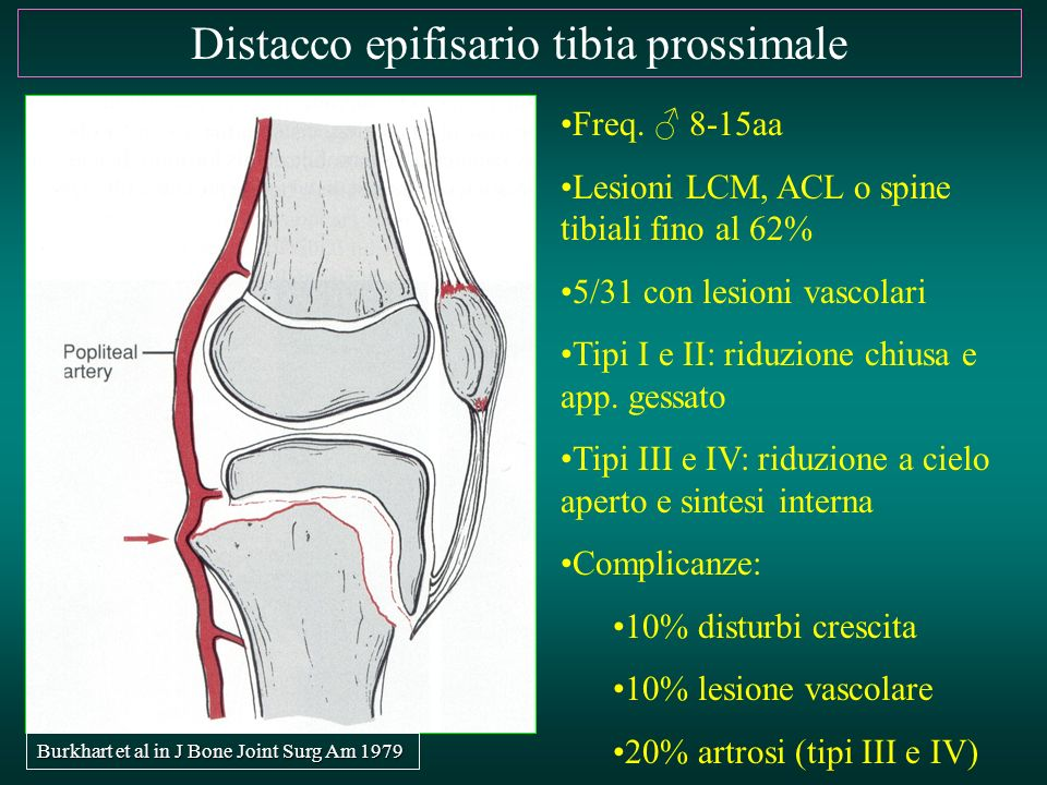 Distacco epifisario tibia prossimale