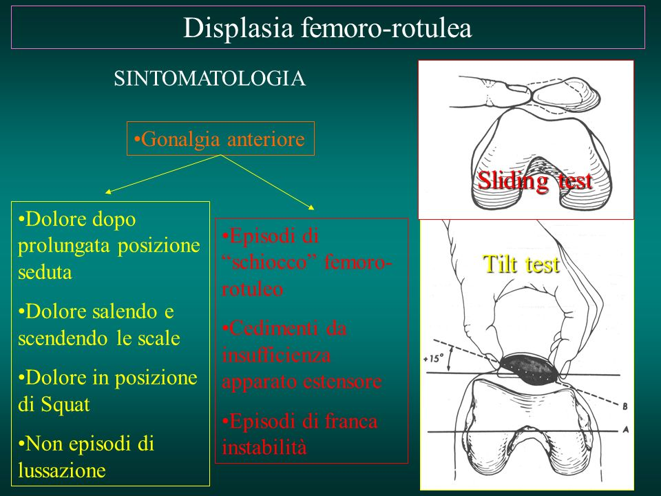 Displasia femoro-rotulea