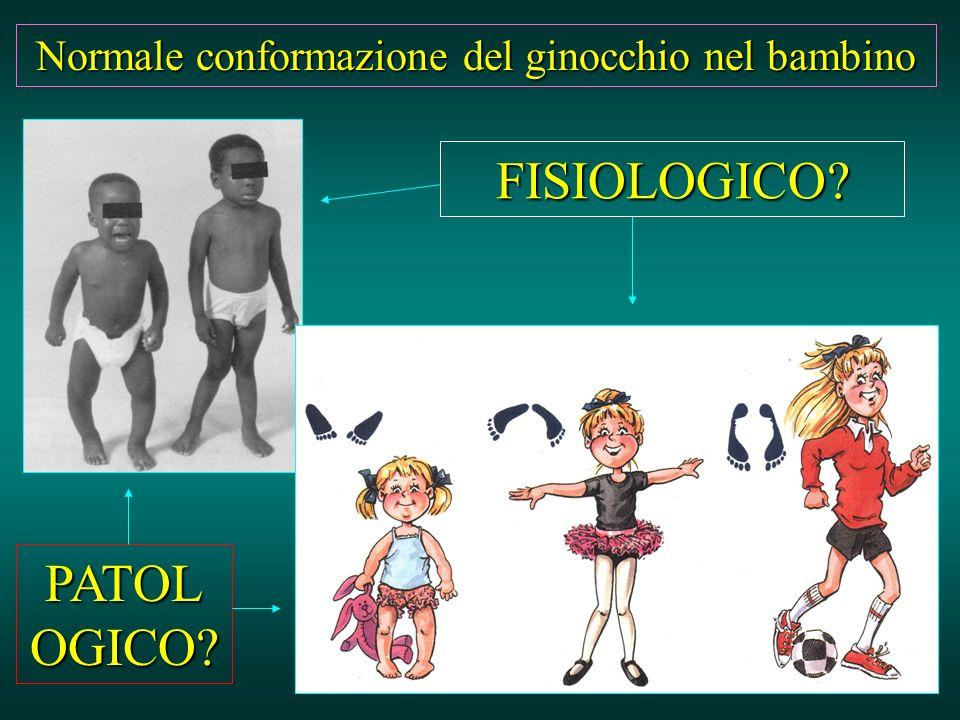 Normale conformazione del ginocchio nel bambino