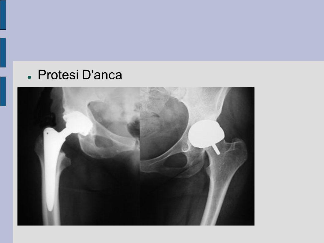Protesi D anca