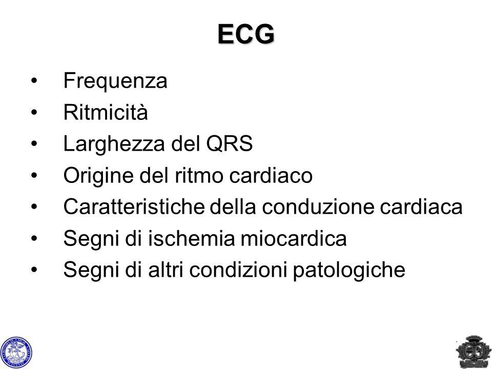 ECG Frequenza Ritmicità Larghezza del QRS Origine del ritmo cardiaco