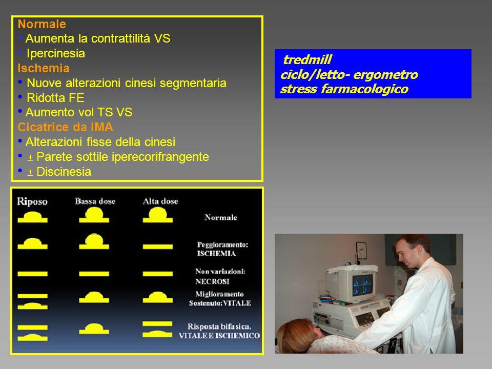 Aumenta la contrattilità VS Ipercinesia Ischemia