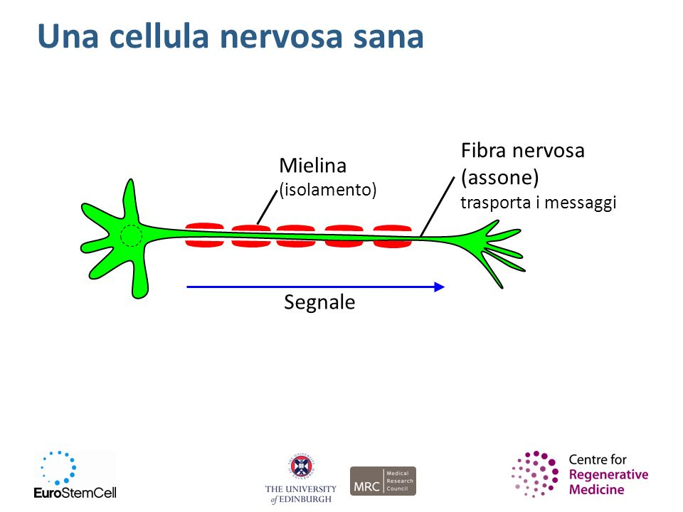 Una cellula nervosa sana