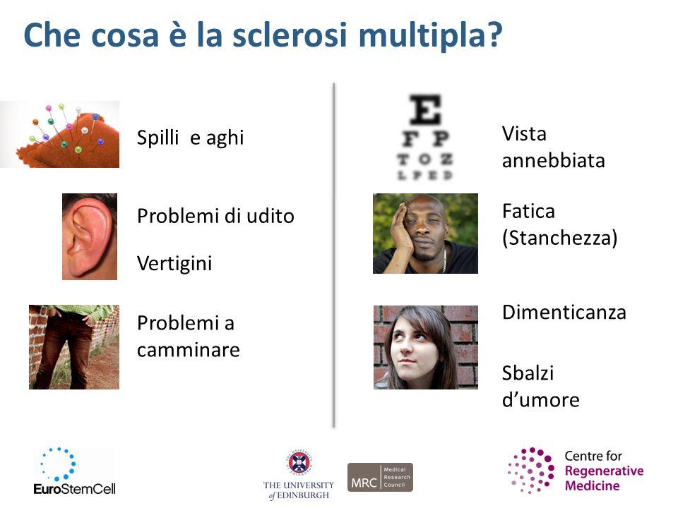 Che cosa è la sclerosi multipla