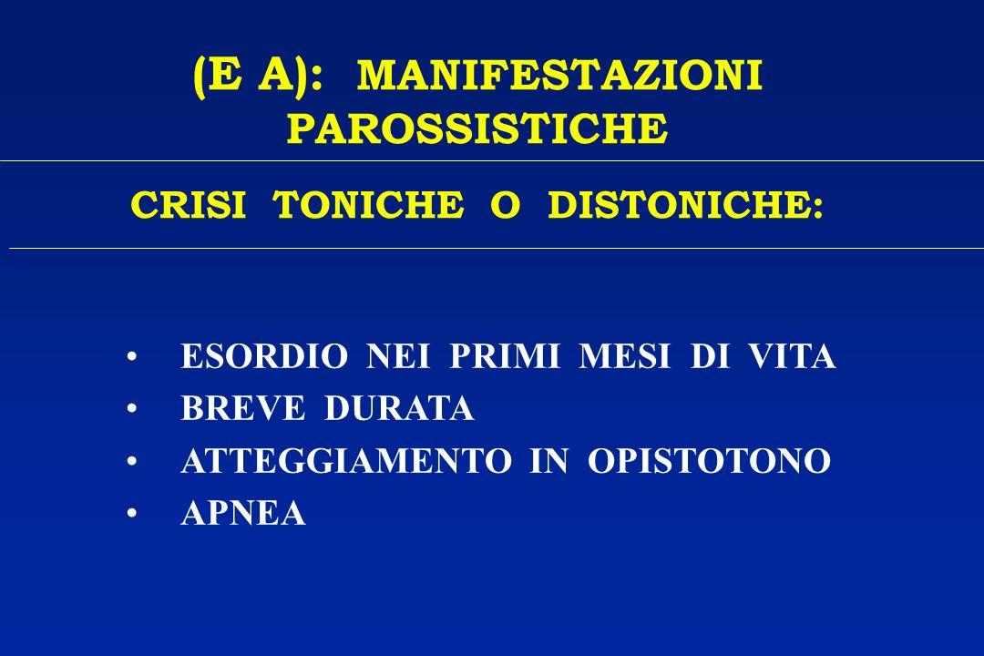 (E A): MANIFESTAZIONI PAROSSISTICHE CRISI TONICHE O DISTONICHE: