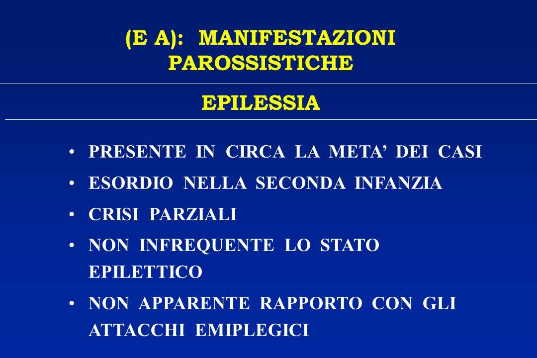 (E A): MANIFESTAZIONI PAROSSISTICHE