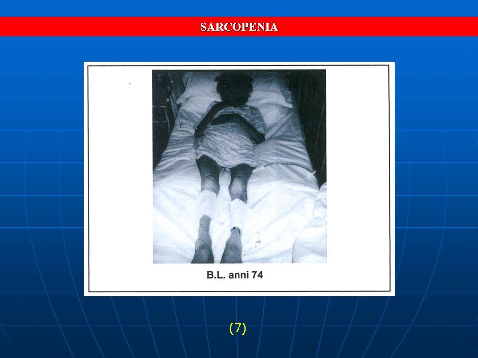 SARCOPENIA (7)