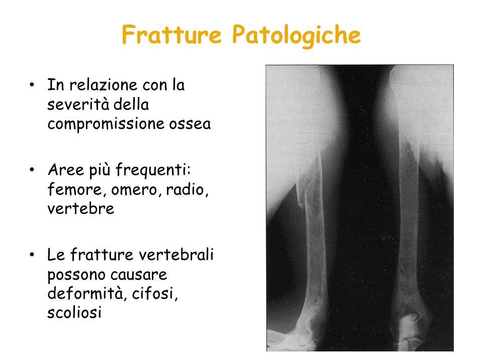 Fratture Patologiche In relazione con la severità della compromissione ossea. Aree più frequenti: femore, omero, radio, vertebre.