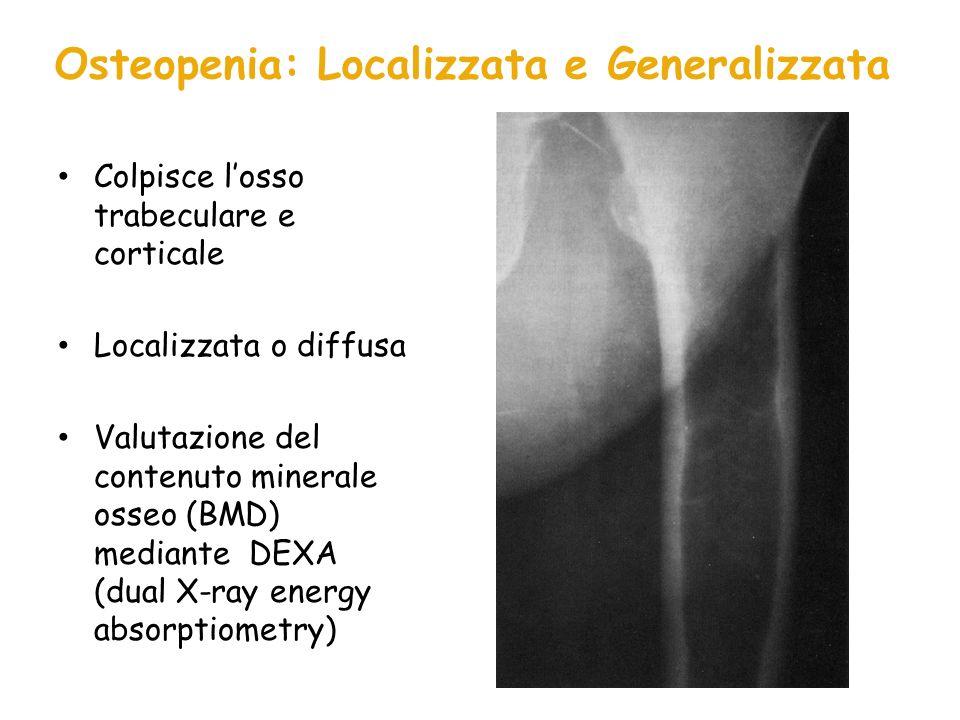 Osteopenia: Localizzata e Generalizzata