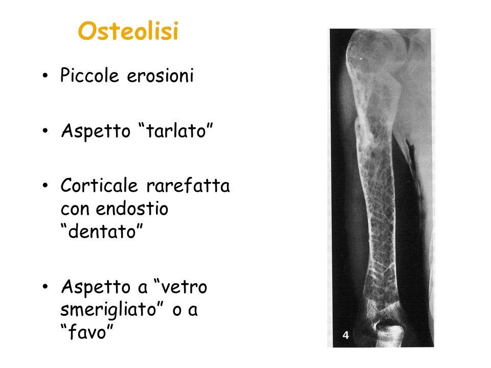 Osteolisi Piccole erosioni Aspetto tarlato