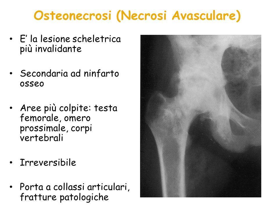 Osteonecrosi (Necrosi Avasculare)