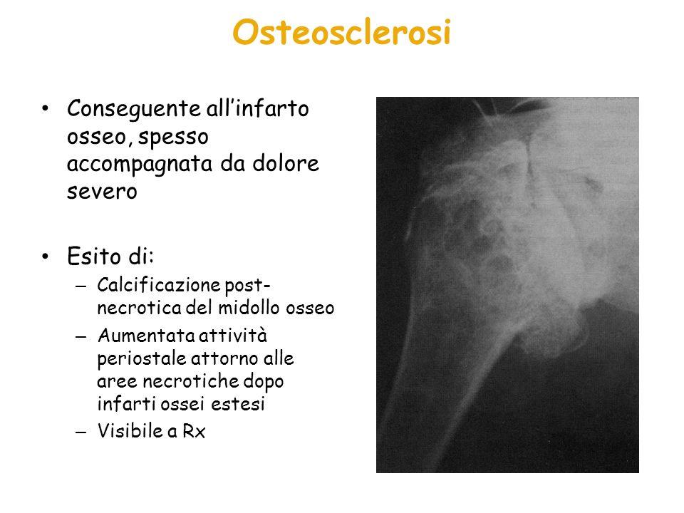 OsteosclerosiConseguente all'infarto osseo, spesso accompagnata da dolore severo. Esito di: Calcificazione post-necrotica del midollo osseo.