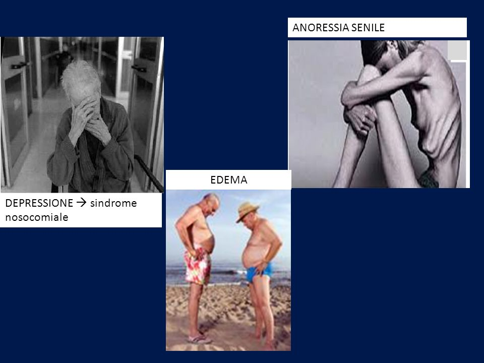 ANORESSIA SENILE EDEMA DEPRESSIONE  sindrome nosocomiale