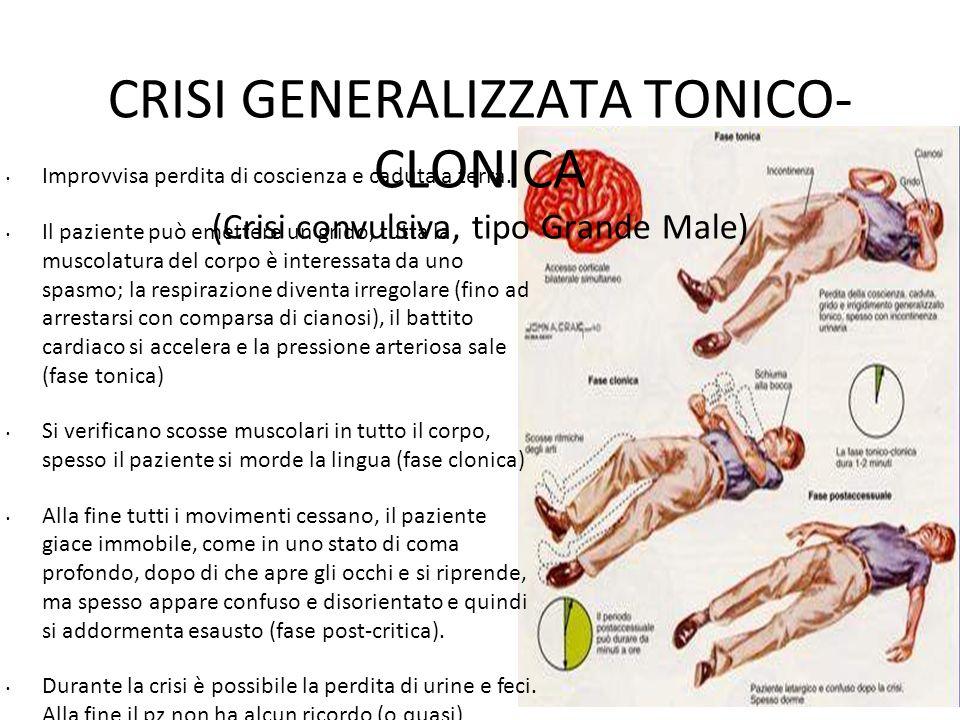 CRISI GENERALIZZATA TONICO-CLONICA (Crisi convulsiva, tipo Grande Male)