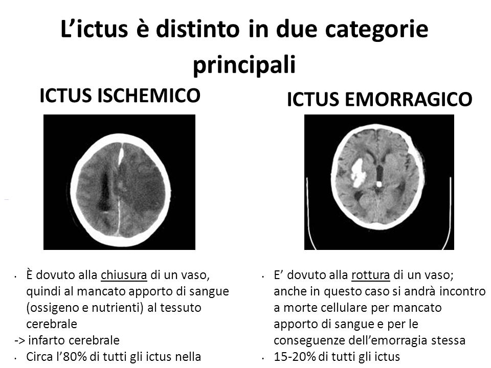 L'ictus è distinto in due categorie principali