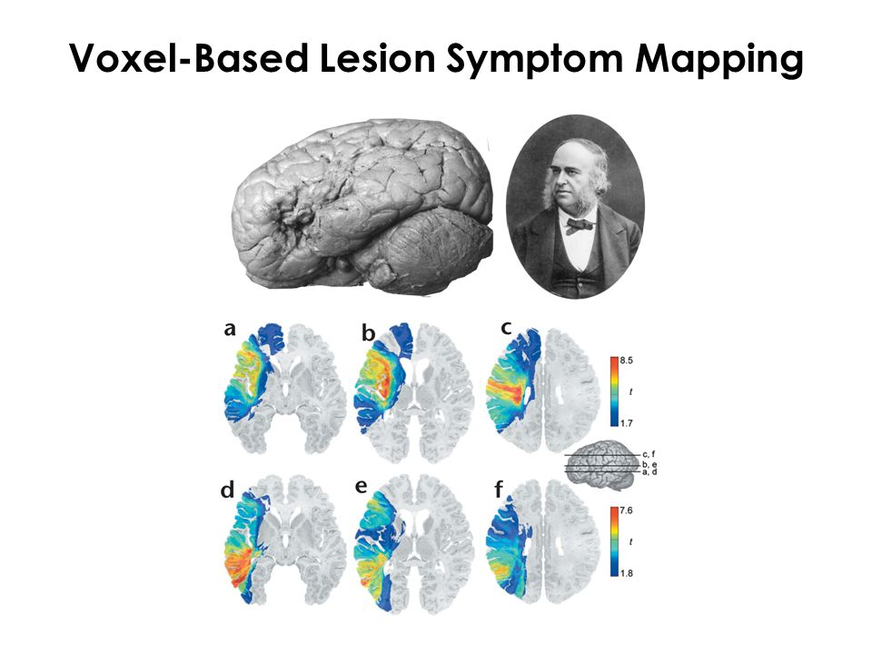 Voxel-Based Lesion Symptom Mapping