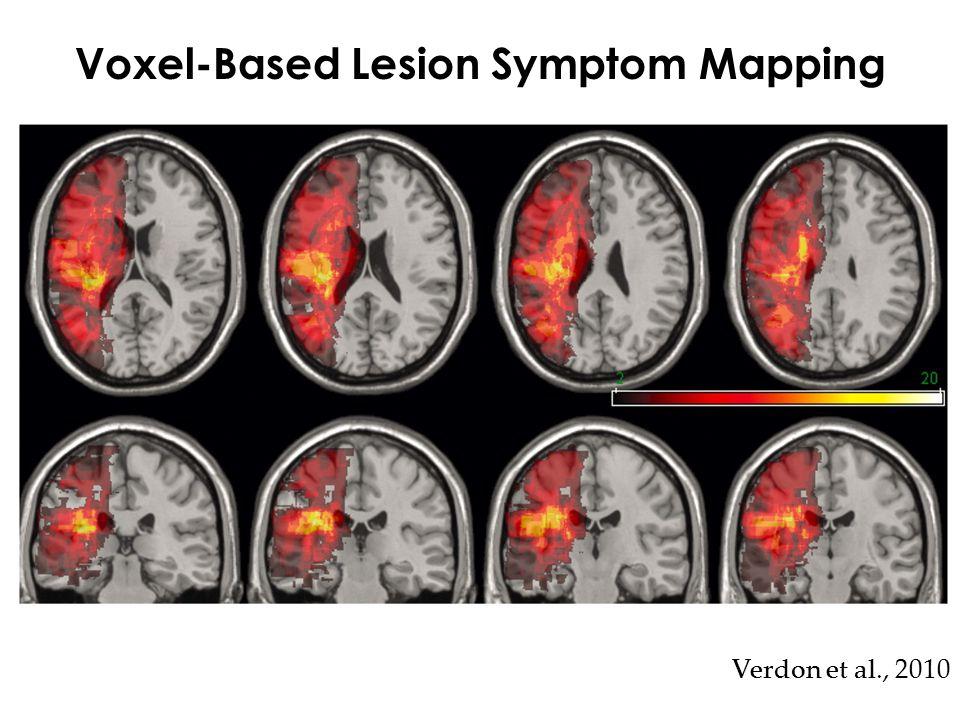 Voxel-Based Lesion Symptom Mapping