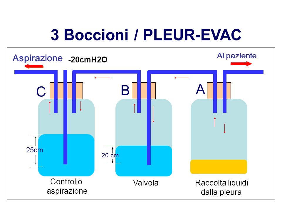 3 Boccioni / PLEUR-EVAC A B C Aspirazione Al paziente -20cmH2O