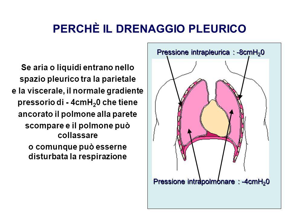 PERCHÈ IL DRENAGGIO PLEURICO