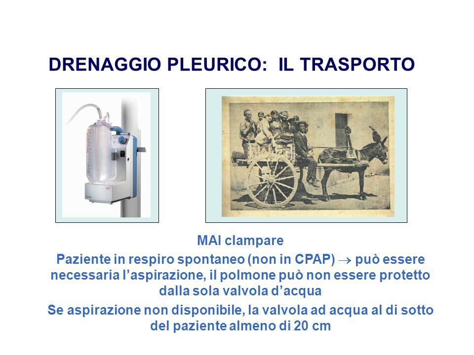 DRENAGGIO PLEURICO: IL TRASPORTO