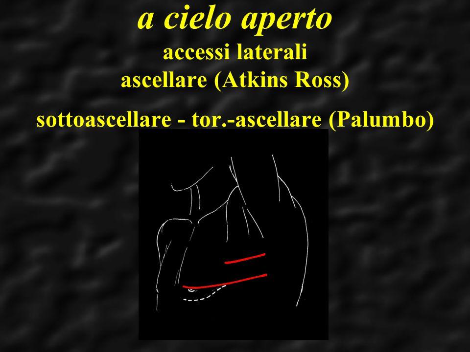 a cielo aperto accessi laterali ascellare (Atkins Ross) sottoascellare - tor.-ascellare (Palumbo)