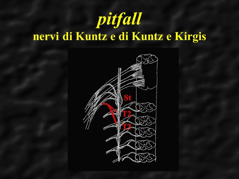 pitfall nervi di Kuntz e di Kuntz e Kirgis