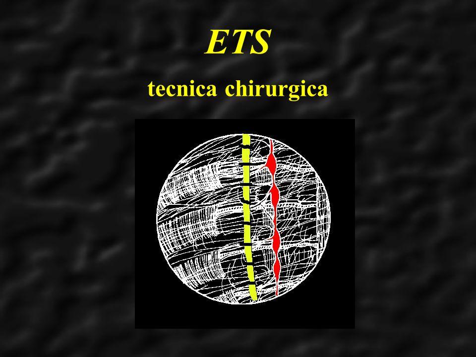 ETS tecnica chirurgica