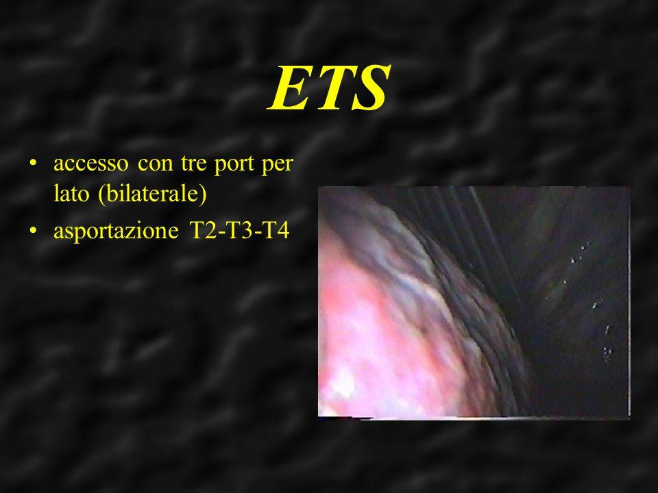 ETS accesso con tre port per lato (bilaterale) asportazione T2-T3-T4