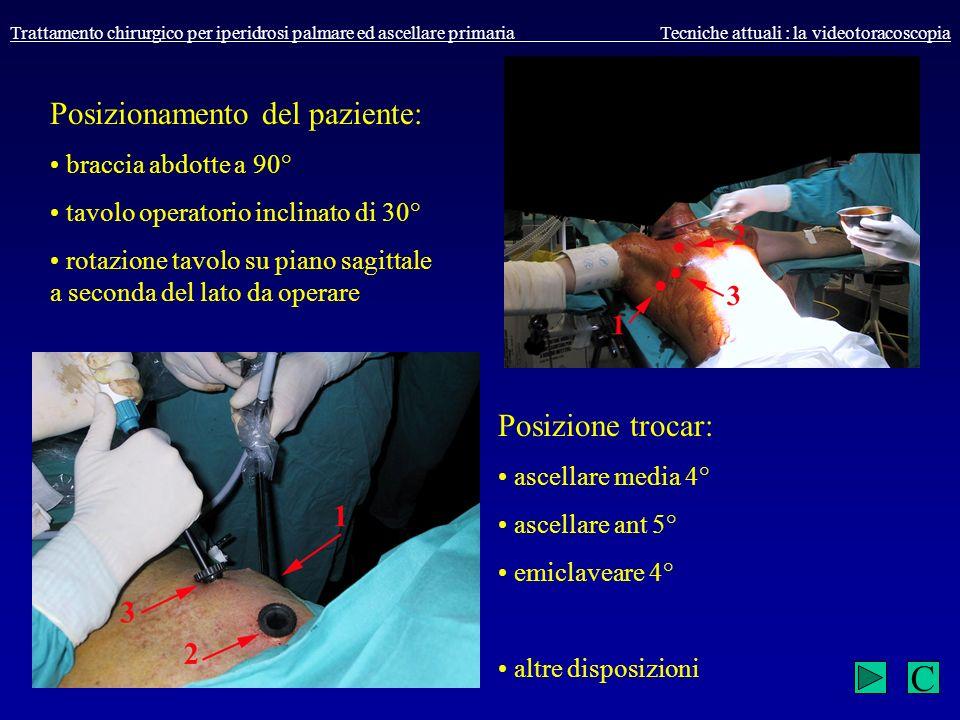 C Posizionamento del paziente: Posizione trocar: braccia abdotte a 90°