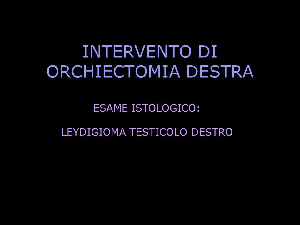 INTERVENTO DI ORCHIECTOMIA DESTRA