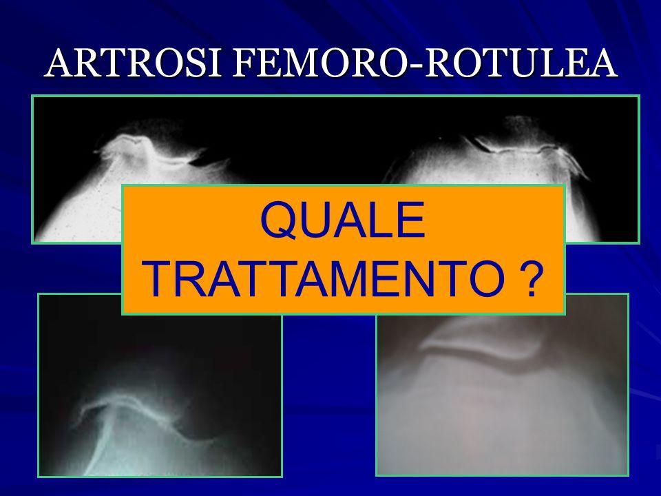 ARTROSI FEMORO-ROTULEA