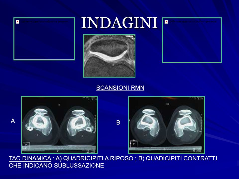 INDAGINI SCANSIONI RMN A B