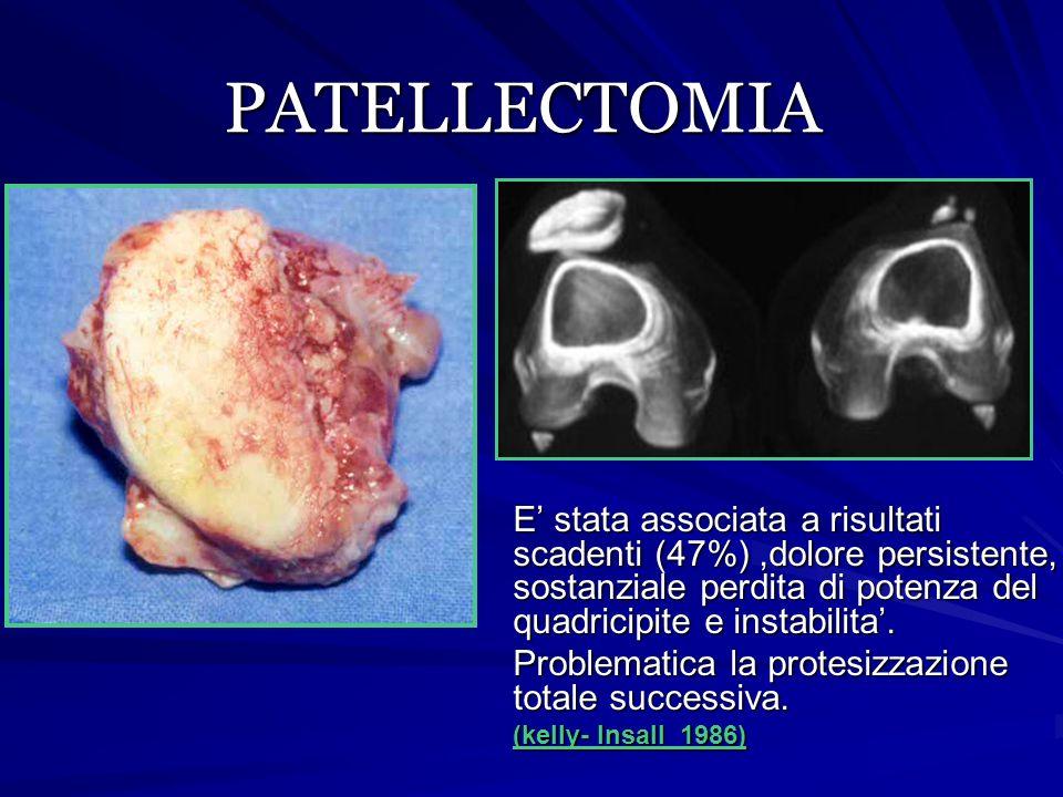 PATELLECTOMIA E' stata associata a risultati scadenti (47%) ,dolore persistente, sostanziale perdita di potenza del quadricipite e instabilita'.